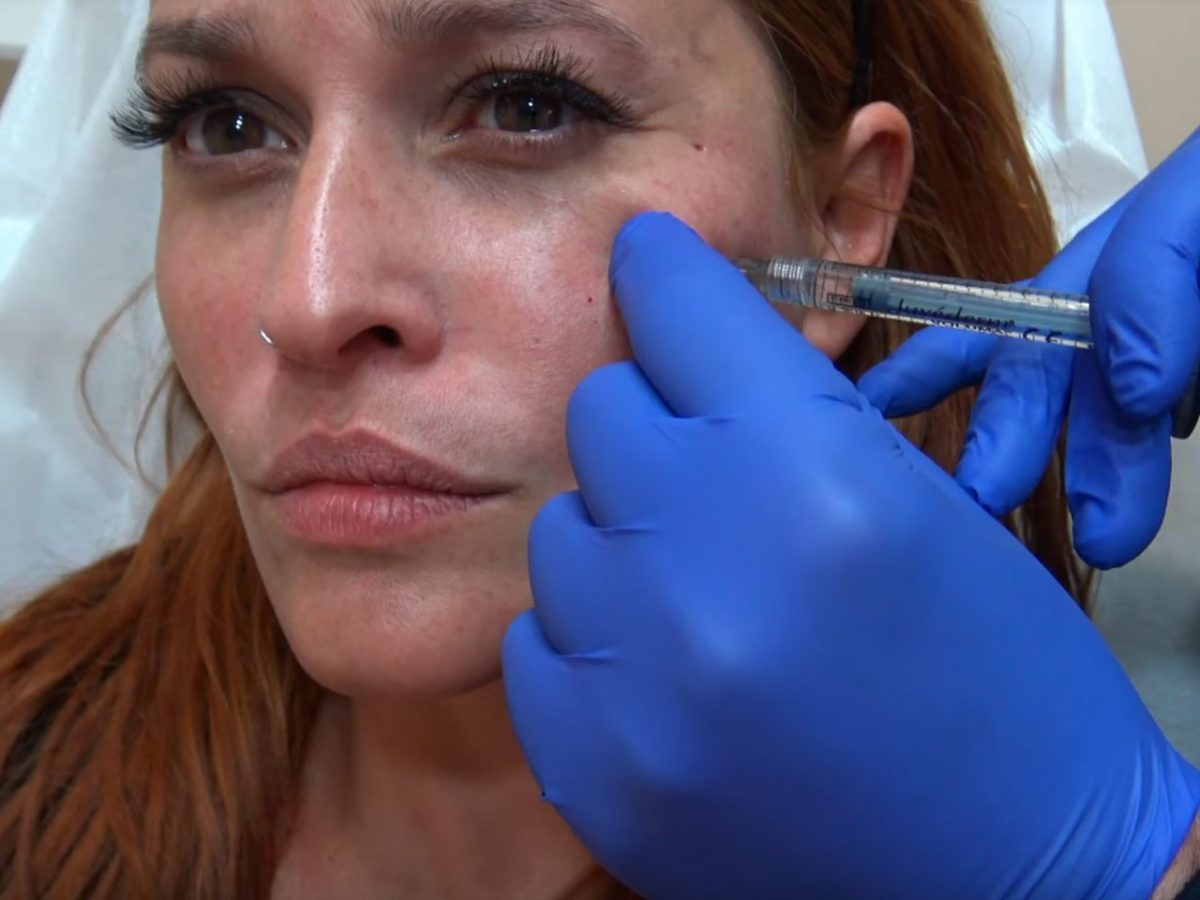 Botox tips από τη Σίσσυ Χρηστίδου  VIDEO - YourTipster.gr e6e73119be0